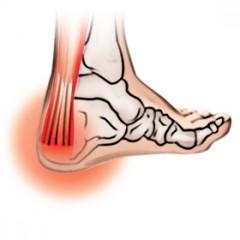 Bionova_achilles-tendonitis